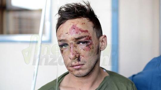 joven victima policia